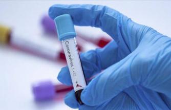Son 24 saatte korona virüsten 71 kişi hayatını kaybetti