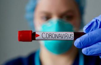 Korona virüsten 65 kişi hayatını kaybetti
